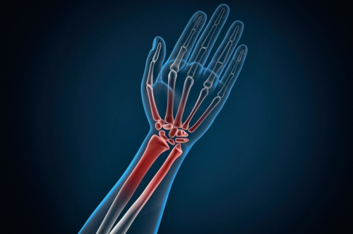 Human hand and wrist pain caused by arthritis. 3D illustration. Contains clipping path - slon.pics - free stock photos and illustrations