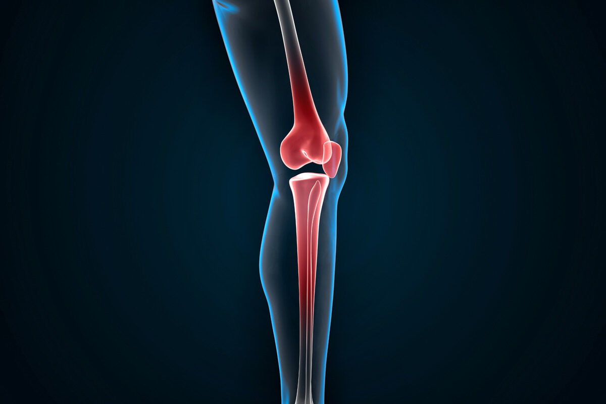 Knee joint pain - slon.pics - free stock photos and illustrations
