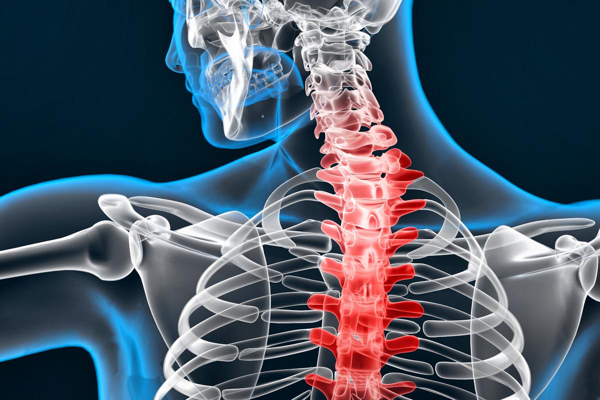 Illustration of human spine - slon.pics - free stock photos and illustrations