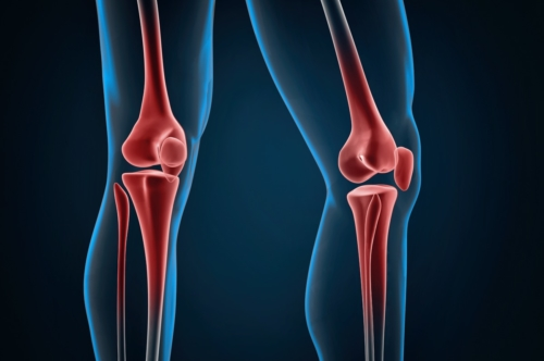 Injured knees close-up - slon.pics - free stock photos and illustrations