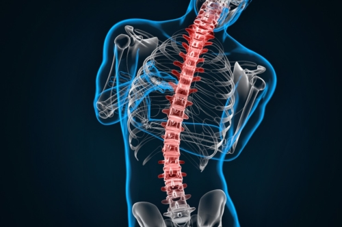 Spondylosis and Scoliosis - slon.pics - free stock photos and illustrations