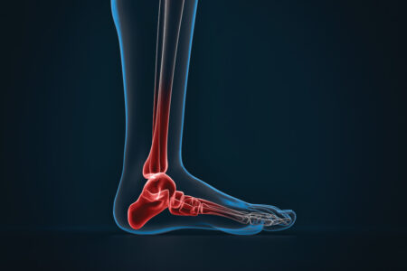Arthritis of ankle. X-ray of foot. Lateral view - slon.pics - free stock photos and illustrations